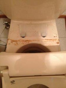 洗浄便座の汚れ